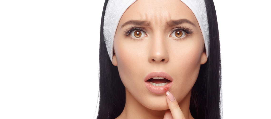 huuliherpes oireet